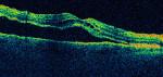 Netzhautablösung (Amotio retinae)
