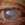 Augenverletzung